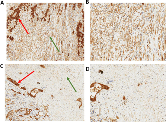 Immunohistochemistry of stromal AnxA2 expression in pancreatic cancer.