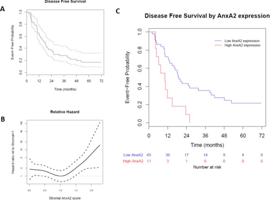 Effect of stromal AnxA2 score on disease-free survival in pancreatic cancer.