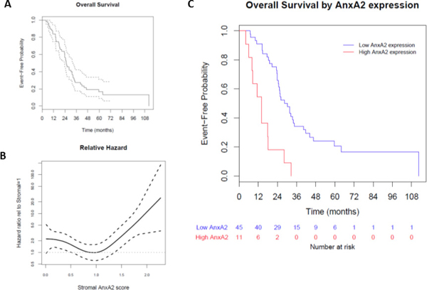 Effect of stromal AnxA2 score on overall survival.