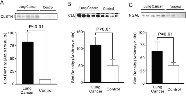 Oncotarget | Calsyntenin-1, clusterin and neutrophil gelatinase