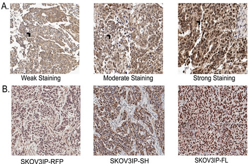 SKOV3IP xenograft tumors recapitulate the expression of ARID3B in ovarian cancer.