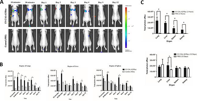 In vivo noninvasive bioluminescent visualization of EV-CAL-62/Rluc biodistribution in nude mice and organ distribution.