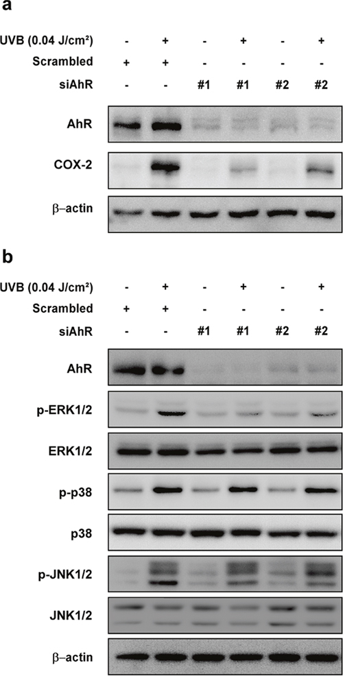 Effect of AhR knockdown on UVB-induced COX-2 expression and phosphorylation of ERK1/2, p38, and JNK1/2 in HaCaT cells.