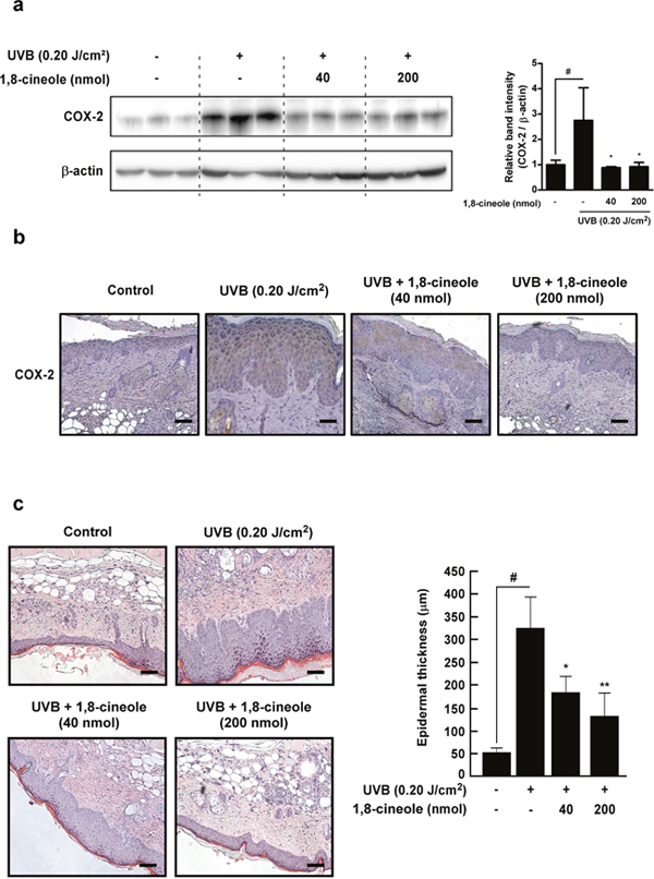Effect of 1,8-cineole on UVB-induced COX-2 expression and epidermal hyperplasia in SKH-1 hairless mouse skin.