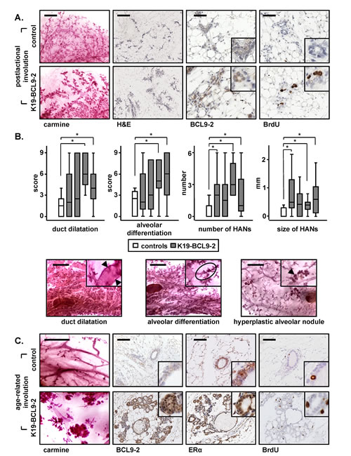 In vivo overexpression of BCL9-2 delays the postlactational and age-related involution and induces preneoplastic changes of the mammary gland in mice.
