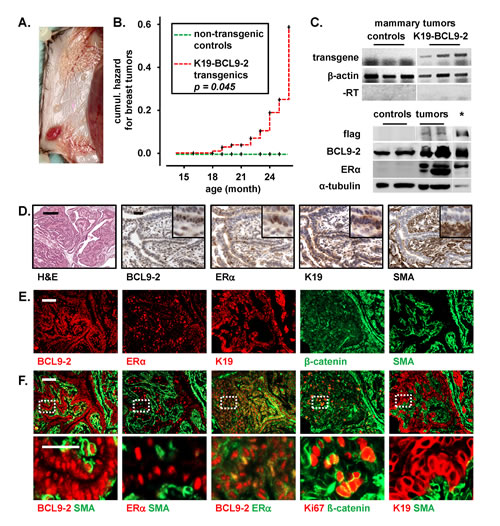 Aged BCL9-2 transgenic mice develop ER+ breast cancers.