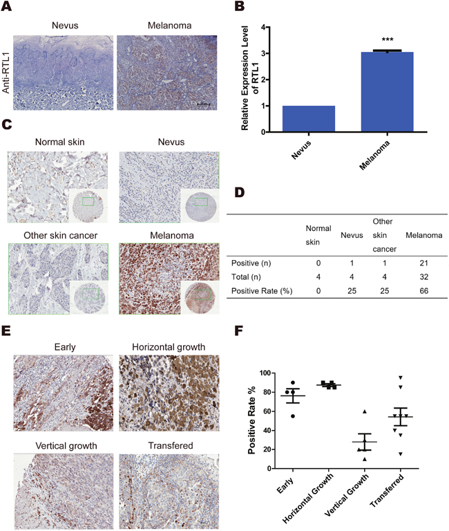 RTL1 is highly expressed in human skin melanoma.