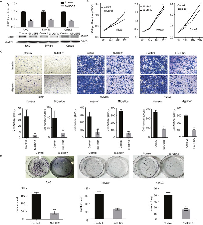 UBR5 promotes the growth and aggressiveness of CRC cells.