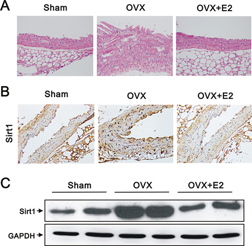 Histology, IHC, and western blot analyses of aortas from sham, OVX, and OVX+E2 mice.