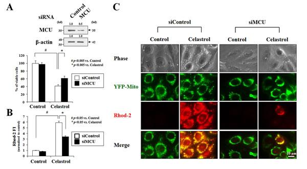 MCU knockdown inhibits celastrol-induced paraptosis.