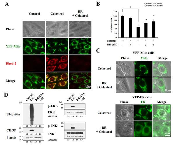 Inhibition of MCU blocks celastrol-induced paraptosis.