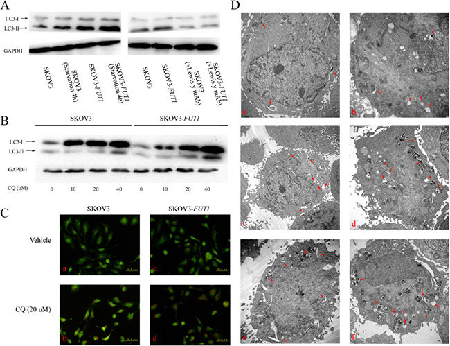 Lewis y antigen overexpression promoted autophagy in the ovarian cancer cell line SKOV3.