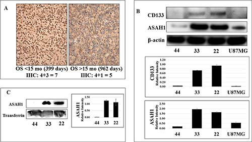 While CD133 (+) glioblastoma stem-like cancer cell lines 22 and 33 express a high level of ASAH1, limited expression of ASAH1 was seen in CD133- GSC 44 and U87MG cells.