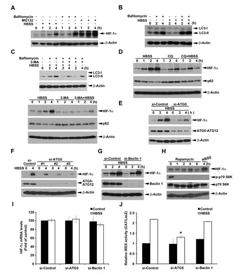 Beclin 1-independent macroautophagy positively regulates HBSS-induced HIF-1α IRES activity in HeLa cells.