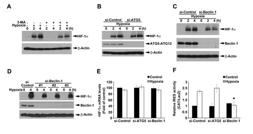 ATG5-independent macroautophagy positively regulates hypoxia-induced HIF-1α.