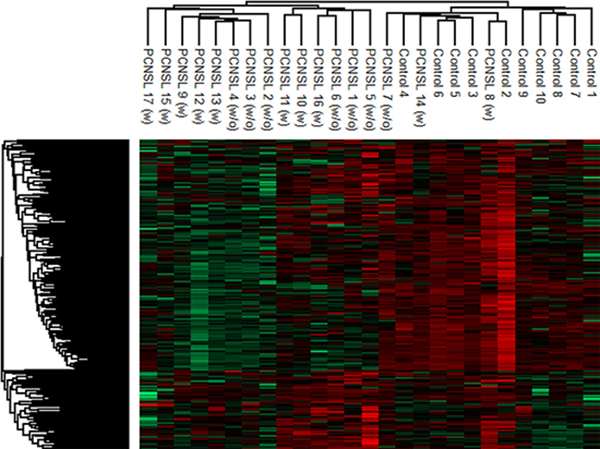 Hierarchical cluster analysis of the CSF proteome in PCNSL and control patients.