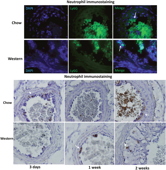 Immunocytochemical detection of neutrophils in the ligated carotid artery of Apoe-/- mice fed a chow or Western diet.