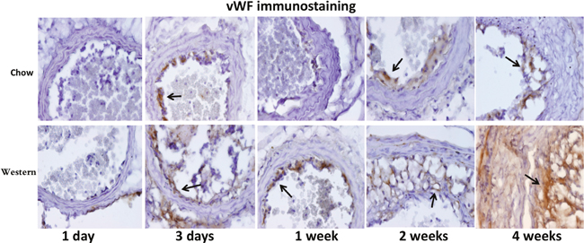 Immunohistochemical staining for von Willebrand Factor (VWF) in the ligated carotid arteries of Apoe-/- mice fed a chow diet (top row) or a Western diet (bottom row) 1 day, 3 days, 1, 2 and 4 weeks after ligation.