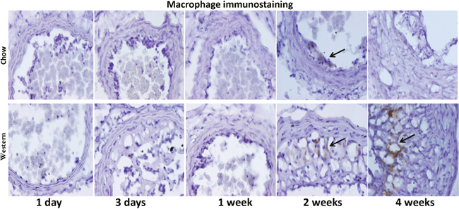 Immunocytochemical detection of macrophages in ligated carotid arteries of Apoe-/- mice with different post-ligation durations.