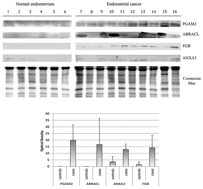 Western blot analysis of PGAM2, ABRACL, ANXA3, FBG normal endometrium uterine aspirate and endometrial cancer uterine aspirate.