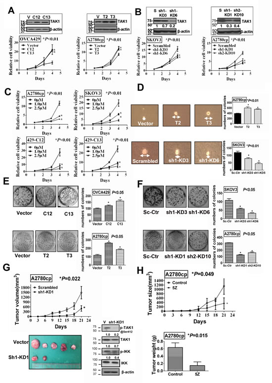 TAK1 promotes ovarian cancer cell growth in vitro and in vivo.