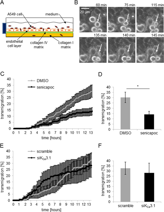 The KCa3.1 channel blocker senicapoc inhibits invasion of A549 cells through an endothelial cell layer.