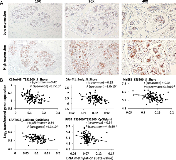 DNMT3A protein expression patterns by immunohistochemistry in histologically normal breast tissues (A) and correlations between age-related DNA methylation and gene expression (B).