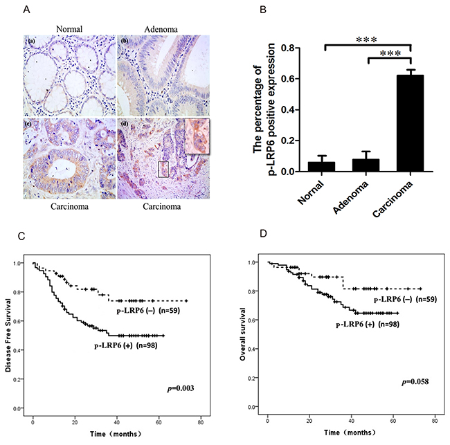 Immuno-staining of p-LRP6 correlated with outcome of colorectal cancers.