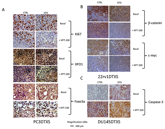Immunohistochemical analyses of PCa xenograft treated with DTX, KPT330 or combinations in vivo.