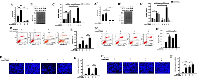 Effect of VEGFA-siRNA on HIF-1α and VEGFA expression and apoptotic level in NMR and mouse HSCs.