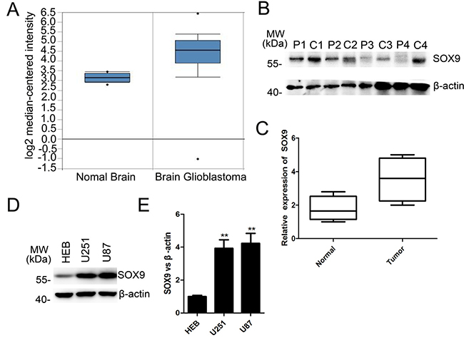Oncotarget Sox9 Pdk1 Axis Is Essential For Glioma Stem Cell Self