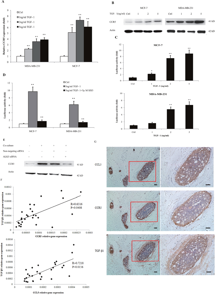 TGF-β signaling regulated the expression of CCR5.