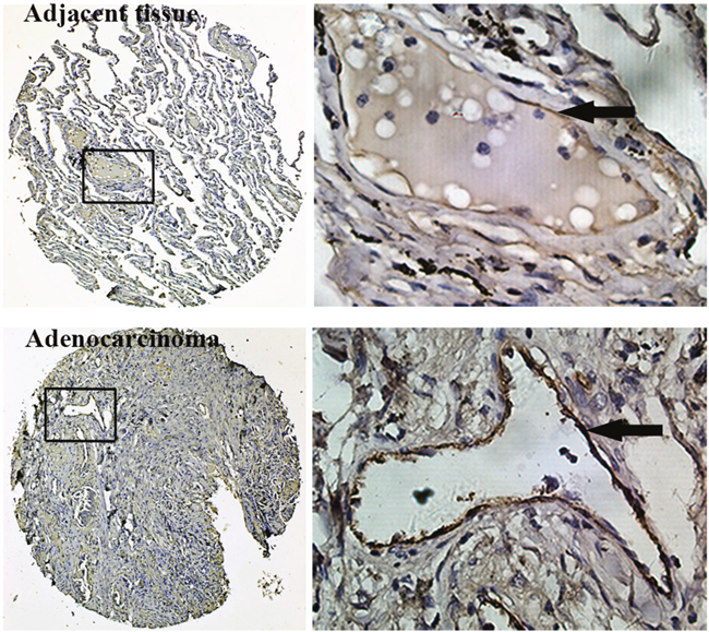 Immunohistochemistry for vWF using TMAs of human lung adenocarcinoma tissues and adjacent normal lung tissues.