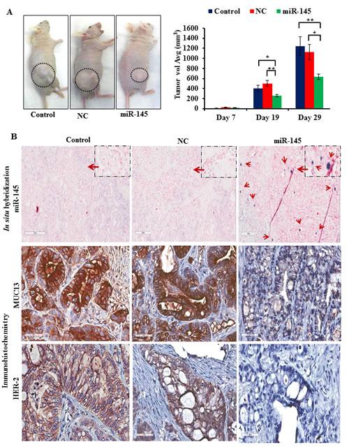 Fig.5: miR-145 inhibits tumor growth in vivo.