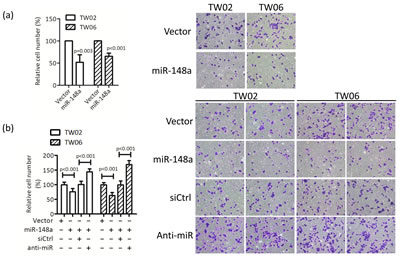 miR-148a inhibits cell migration in vitro.