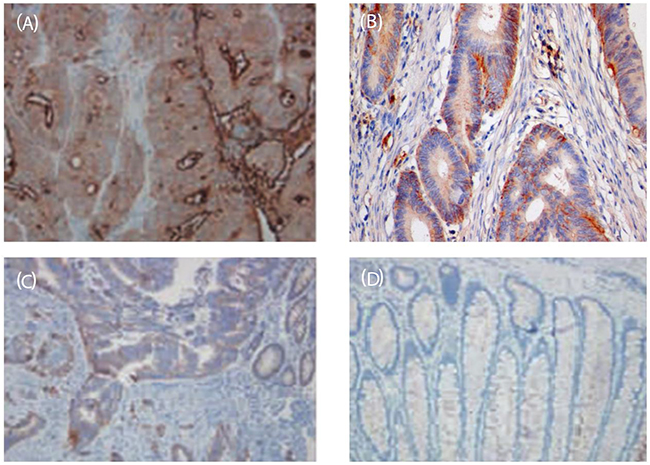 Figure 2:Immunohistochemical map of IL-35 in colon cancer tissues and adjacent tissues (SP, ×200).