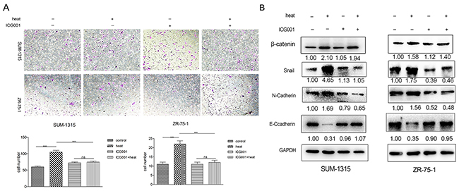 ICG001 suppressed metastasis induced by insufficient MWA in SUM-1315 and ZR-751 breast cancer cells.