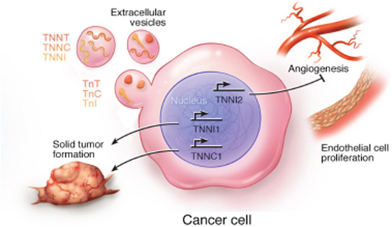 Schematic summary of the cellular processes associated with expression of troponin subunits in cancer cells.