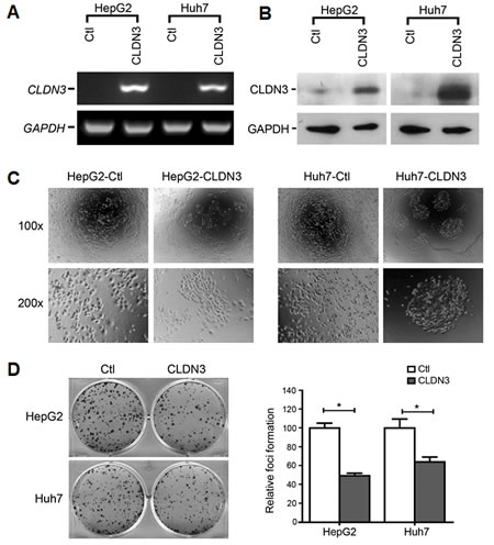 Fig.3: Morphological change and foci inhibition role of CLDN3 in HCC cells.