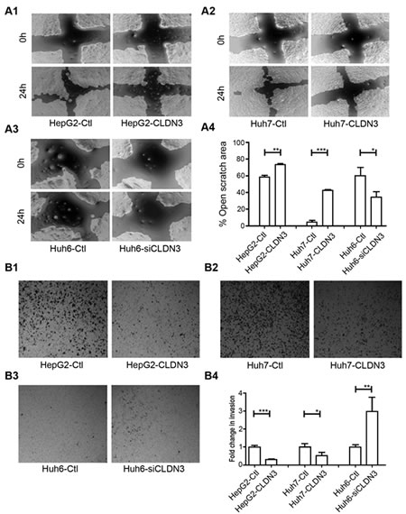 Fig.4: CLDN3 inhibits cell mobility and invasiveness in HCC cells.
