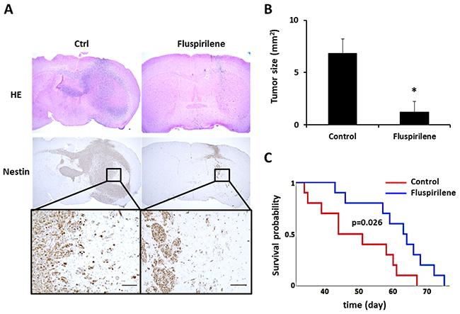 Effect of fluspirilene treatment on the GBM animal model.