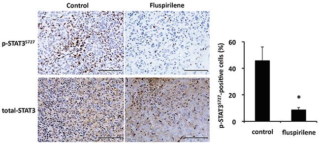 Inhibition of STAT3 activity by fluspirilene in mouse brain tumor.