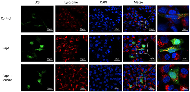 Inhibition of autophagosome-lysosome fusion by leucine in HepG2 cell line.