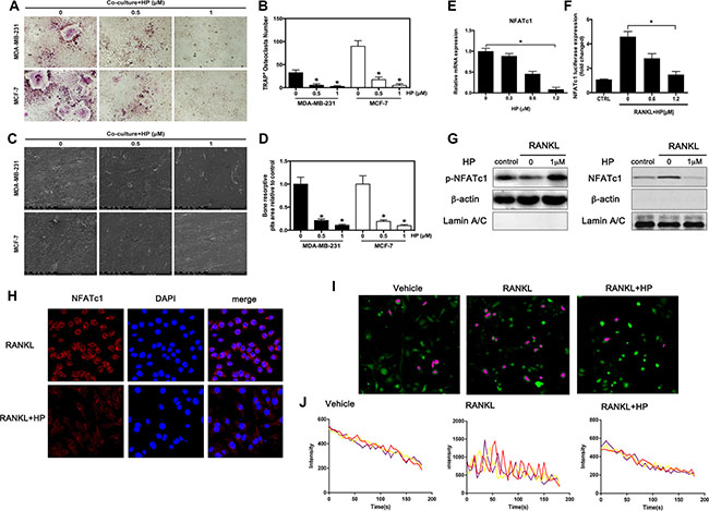 Hypericin inhibits breast cancer-induced osteoclast differentiation and function via suppression of the NFATc1 signaling pathway and attenuation of Ca2+ oscillation in osteoclasts.