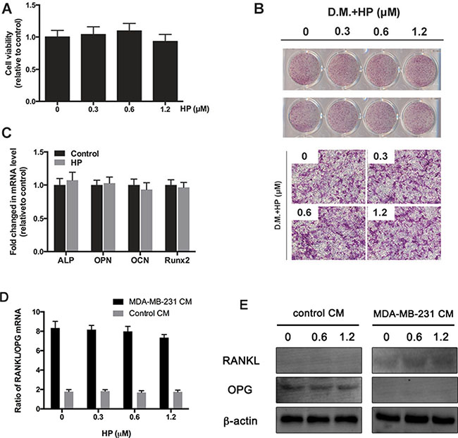 Hypericin has minimal effects on breast-cancer-cell induced increase in RANKL/OPG ratio in osteoblast.