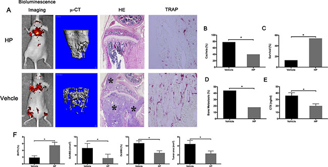 Hypericin reduces bone metastasis and increases survival in breast cancer-bearing mice.