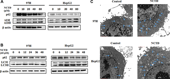 NCTD induces autophagy in HCC cells.