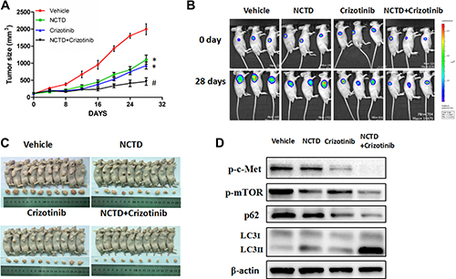 NCTD alone or combined with crizotinib inhibits tumor growth in a xenograft mouse model.
