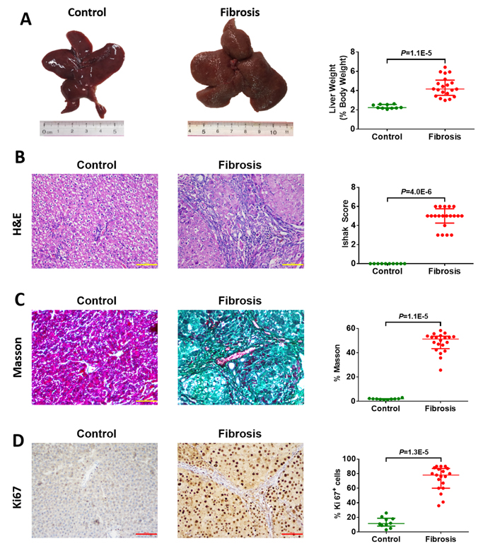 Macroscopic and microscopic findings on control liver tissue (n=10) and diethylnitrosamine (DEN)-induced hepatofibrotic liver tissue (n=20) in male rats.