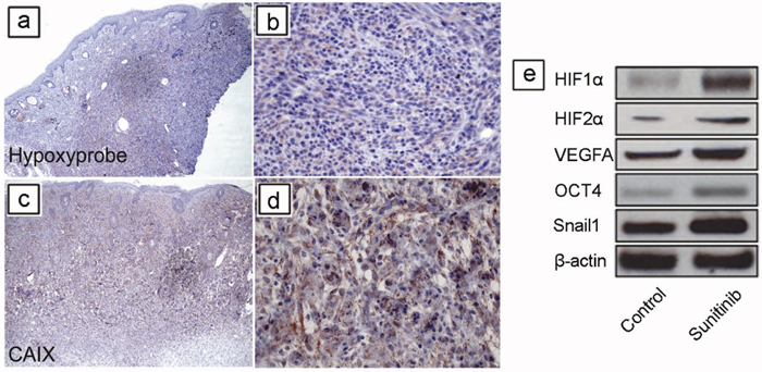 Short-term sunitinib therapy increases tumor hypoxia and HIF regulated proteins in vivo.